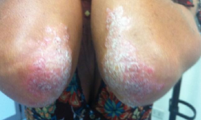Psoriasi al gomito - Prima del trattamento