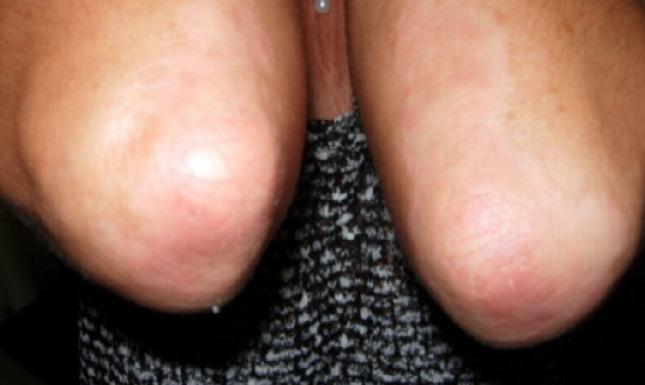 Psoriasi al gomito - Scomparsa dei sintomi dopo 6 mesi
