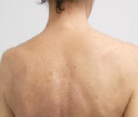 Psoriasi alla schiena - Dopo 3 mesi di trattamento