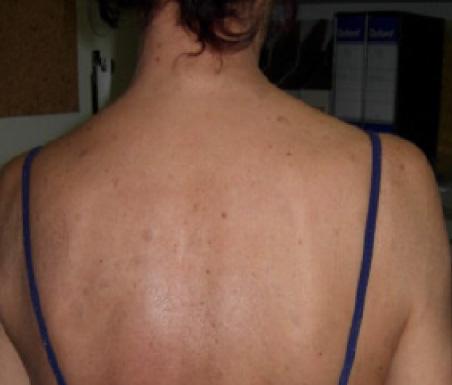 Psoriasi alla schiena - Dopo 6 mesi di trattamento